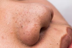 What Is A Blackhead – Definition and Cause