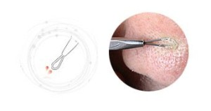 How To Use Blackhead Remover