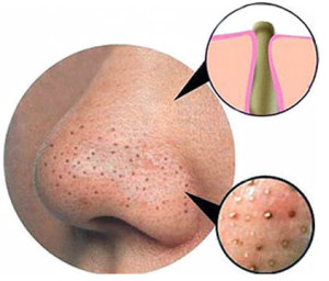 How To Get Rid of Deep Blackheads – Explained & Removal
