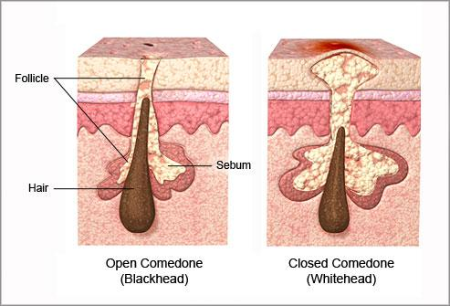 diagram glands under chin how to get rid of comedones all about blackheads under chin diagram