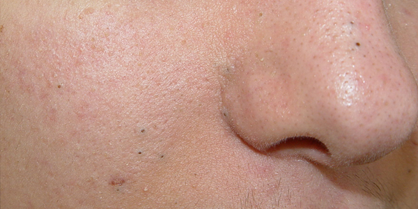 Comedone - A Comprehensive Guide | All About Blackheads