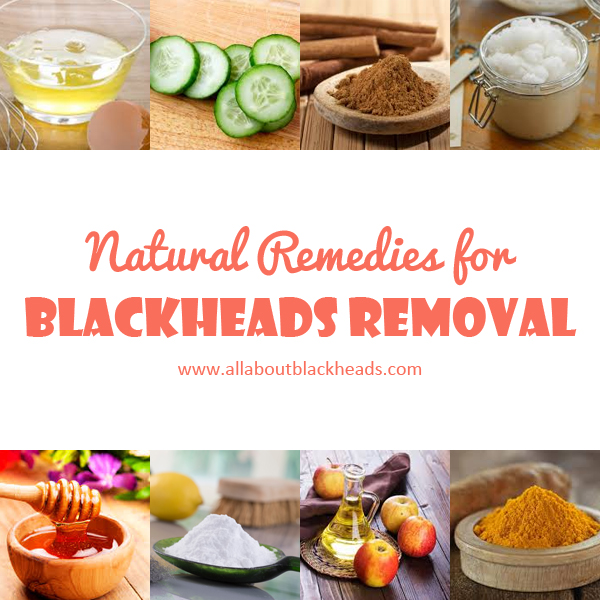 Natural Remedies for Blackheads Removal