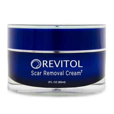 Best Scar Removal Cream: Top 3 Picks for 2017 and their ...