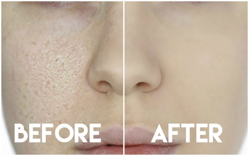 The Best Primers for Pores