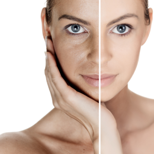 difference in skin with glycolic acid